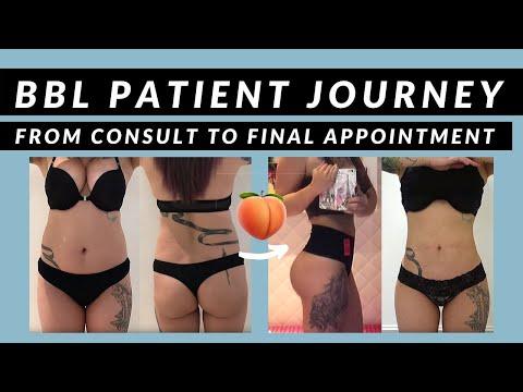 SIXSURGERY | Brazilian Butt Lift Plastic Surgery Journey (Skinny BBL)