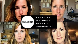 Fillerina Review - Facelift without Plastic Surgery? | All Things Fadra