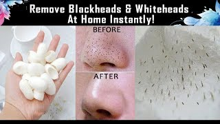 Remove Blackheads & Whiteheads At Home Instantly Video in Tamil/ Easy Painless Method 100% Results