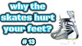 Почему Болят Ноги В Новых Коньках?