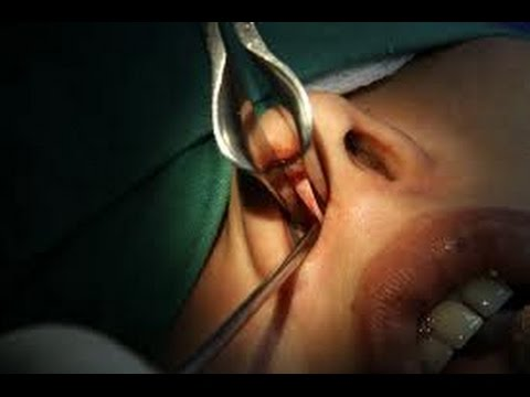 Septoplasty-Deviated Nasal Septum Correction : Dr.K.O.Paulose FRCS