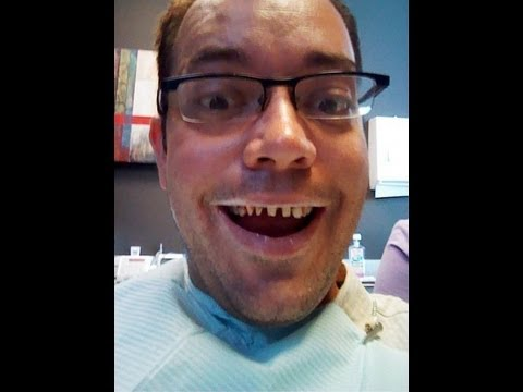 Porcelain Tooth Crowns Cosmetic Dentistry My New Smile
