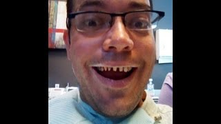 Porcelain Tooth Crowns, Cosmetic Dentistry, My New Smile, And The Dentist's Chair