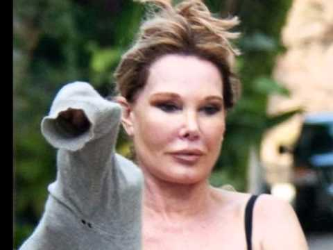 jocelyn wildenstein new face after plastic repair surgery