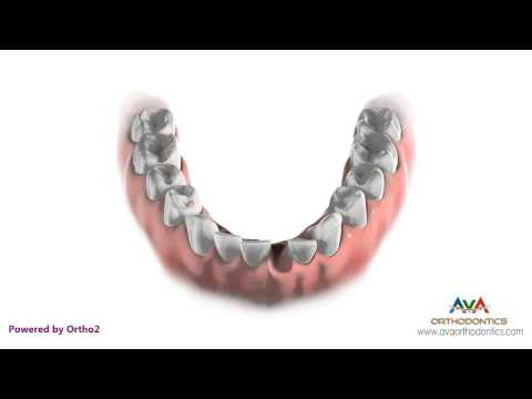 Extraction - Removing Lower Front Tooth - Orthodontic Treatment