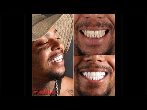 Scouse Tremz (Hip-Hop/Rap) | Attelia Dental Turkey