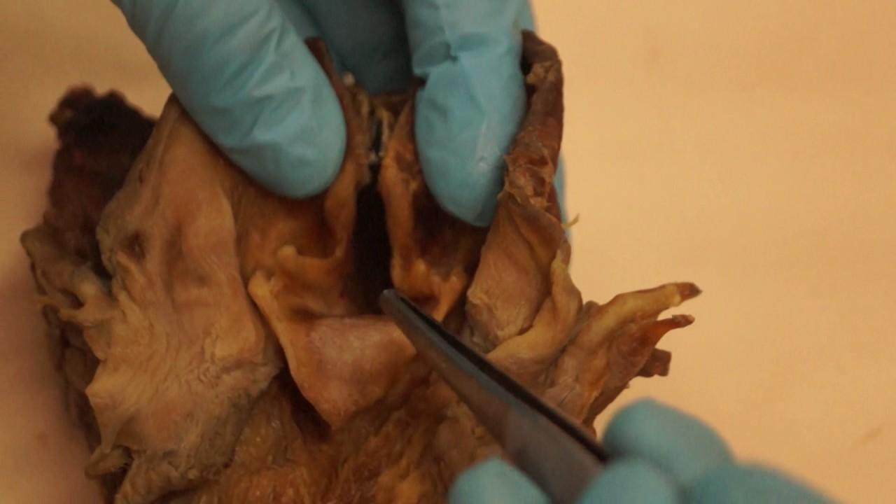 Anatomía Veterinaria: Sistema Digestivo. Aditus Laringeo - YouTube