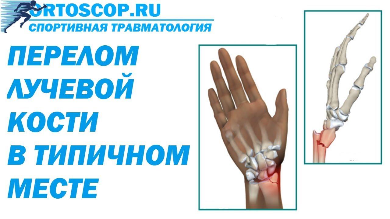перелом руки в типичном месте