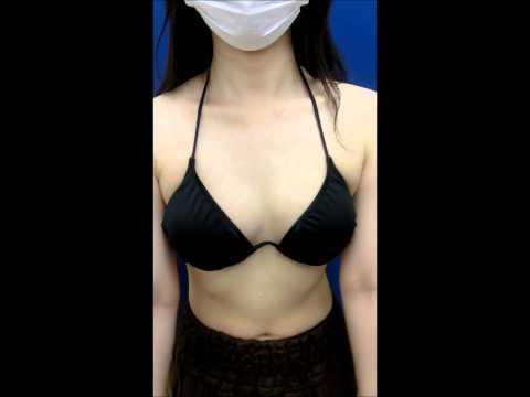 湘南美容外科  杉崎 裕斗のピュアグラフト豊胸 術後2カ月のバスト.wmv