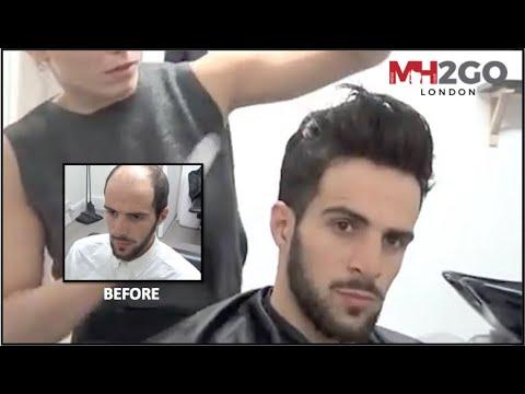 Hair Replacement Fitting Video Sam Hair Loss Baldness Hair Wigs Hair Toupees Hair Pieces