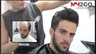 Hair Replacement FITTING VIDEO – Hair loss, Baldness, Hair Wigs, Hair Toupees, Hair pieces