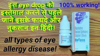 beipos eye drop(review)|इस eye drop को इस्तेमाल करने से पहले जाने इसके फायदे और नुकसान hindi|beipos!
