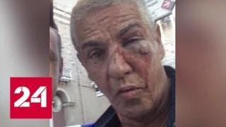 Большой синяк под глазом: с кем подрался в Москве звездный француз - Россия 24