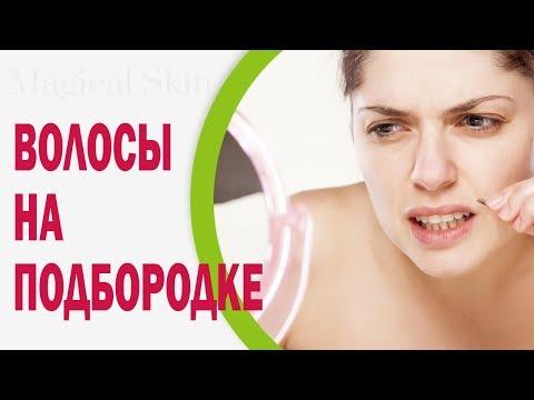 Растут волосы на подбородке у женщин: причины, что делать