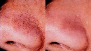 One of Wayne Goss's most viewed videos: HOW TO GET RID OF BLACKHEADS!!!!