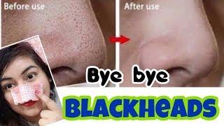 Remove Blackheads/Whiteheads Naturally - Demo | #JSuperkaur