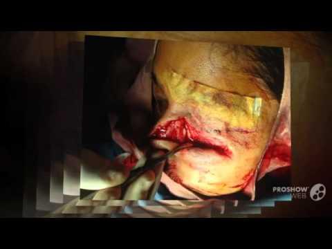 Nasal fracture (ORIF) Dr Mayank Vermani