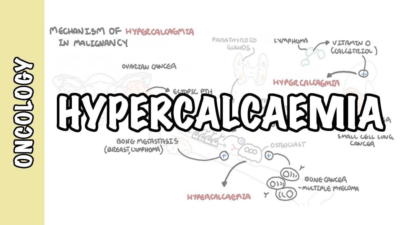 metastatic cancer hypercalcemia