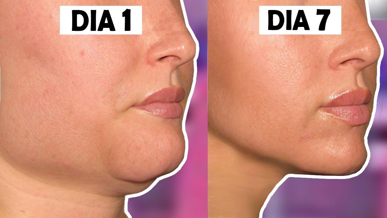 Como hacer para adelgazar el rostro