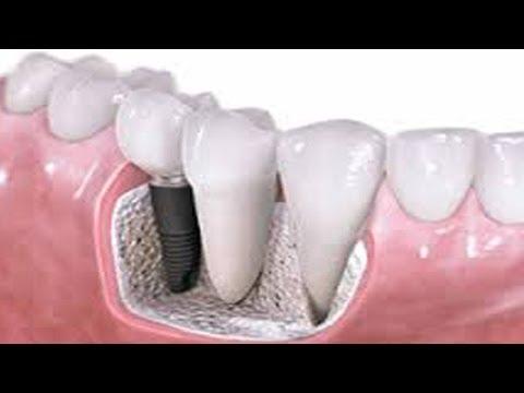 Advanced Artificial Teeth Treatment