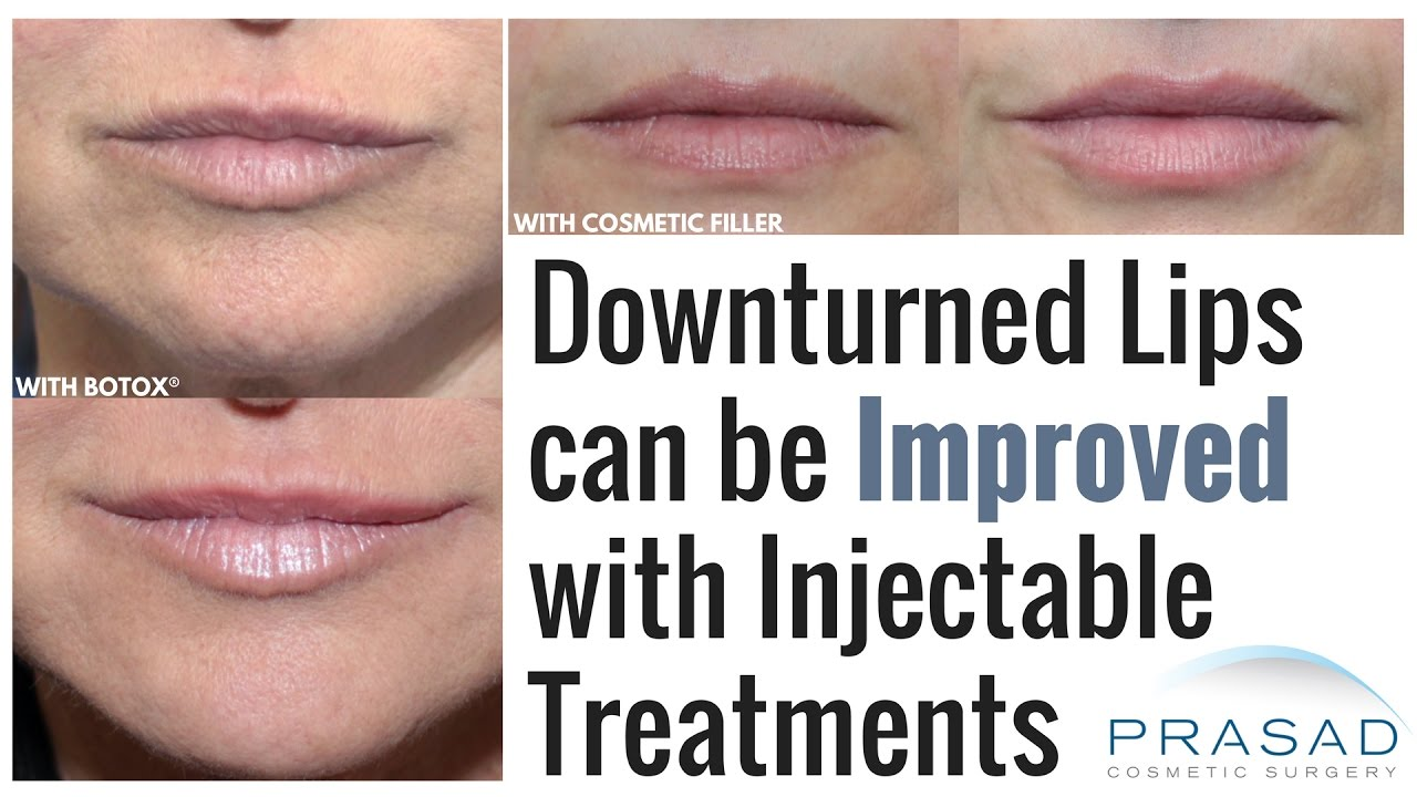 How A U0026quot;Permafrownu0026quot; Or Downturned Lips Can Be Treated With Botoxu00ae Or Cosmetic Fillers - YouTube