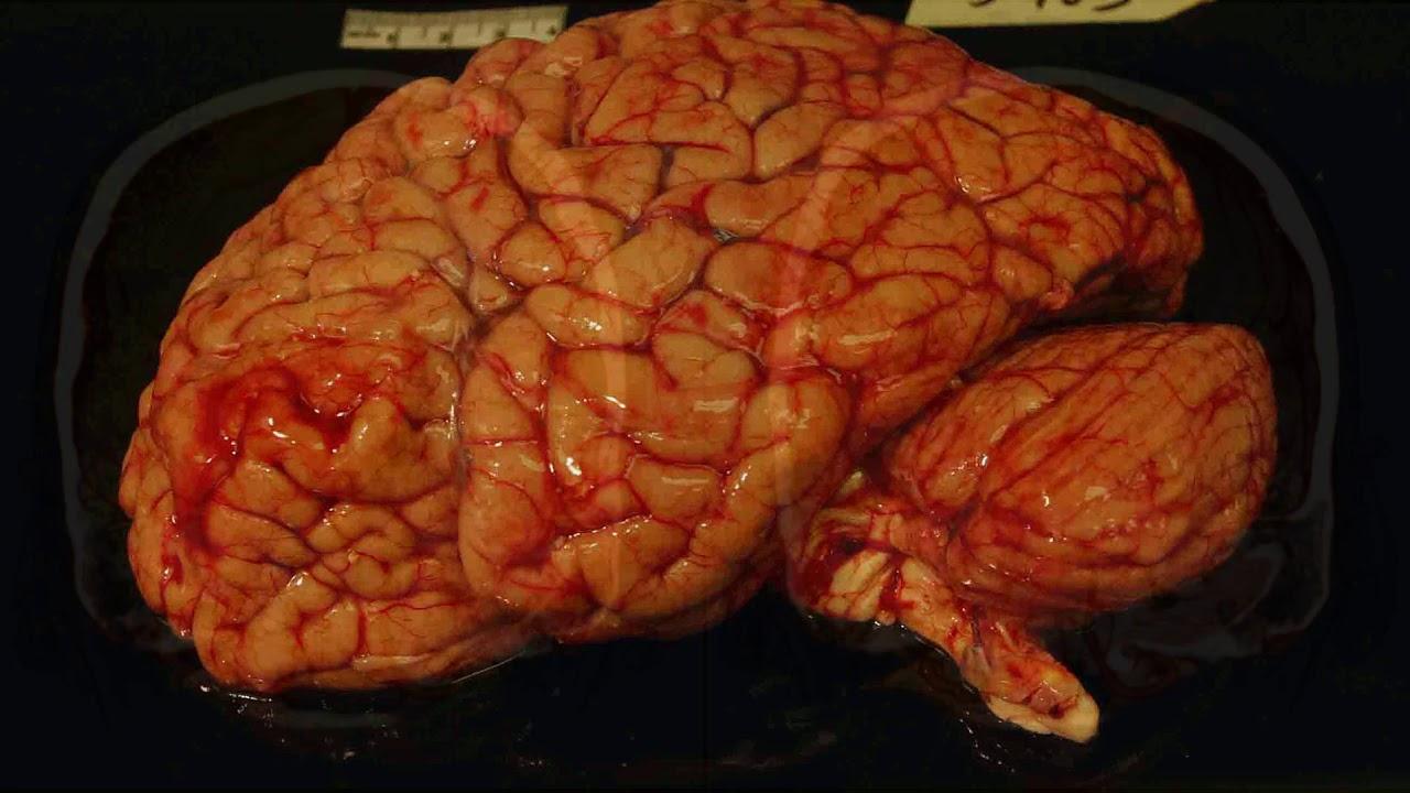 Картинки мозга настоящего