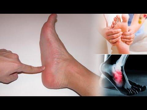 Нога болит когда наступаешь