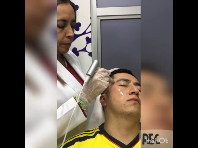 Manejo Cicatrices