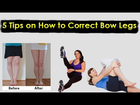 how to correct bow legs This is my opinion nothing more bow leg should correct ifself over time calcium-rich food should be encouraged too k leg i have no idea in both cases.