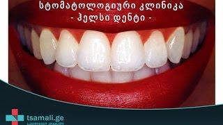 სტომატოლოგიური კლინიკა ჰელსი დენტი