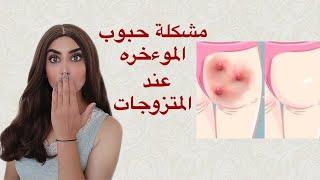 حبوب المؤخره _ اسبابها وكيف التخلص منها