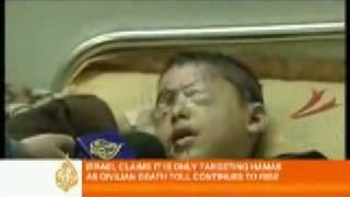 Kinder in Gaza verlieren Beine und Augen