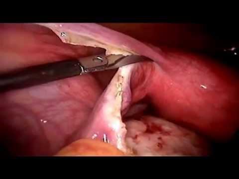 Salpingectomie gauche pour grossesse extra ut rine youtube - Fausse couche grossesse extra uterine ...