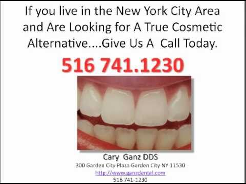 What Do Porcelain Veneers Cost