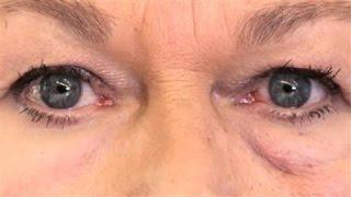 Scientists Make 'Second Skin' to Hide Wrinkles
