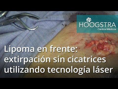 Lipoma en frente: extirpación sin cicatrices utilizando tecnología láser (17023)