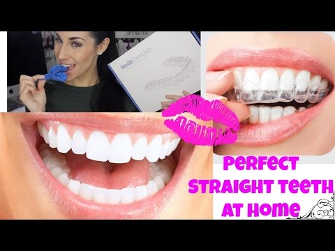 Professional Braces at Home ♡ Teeth Aligners for Straight