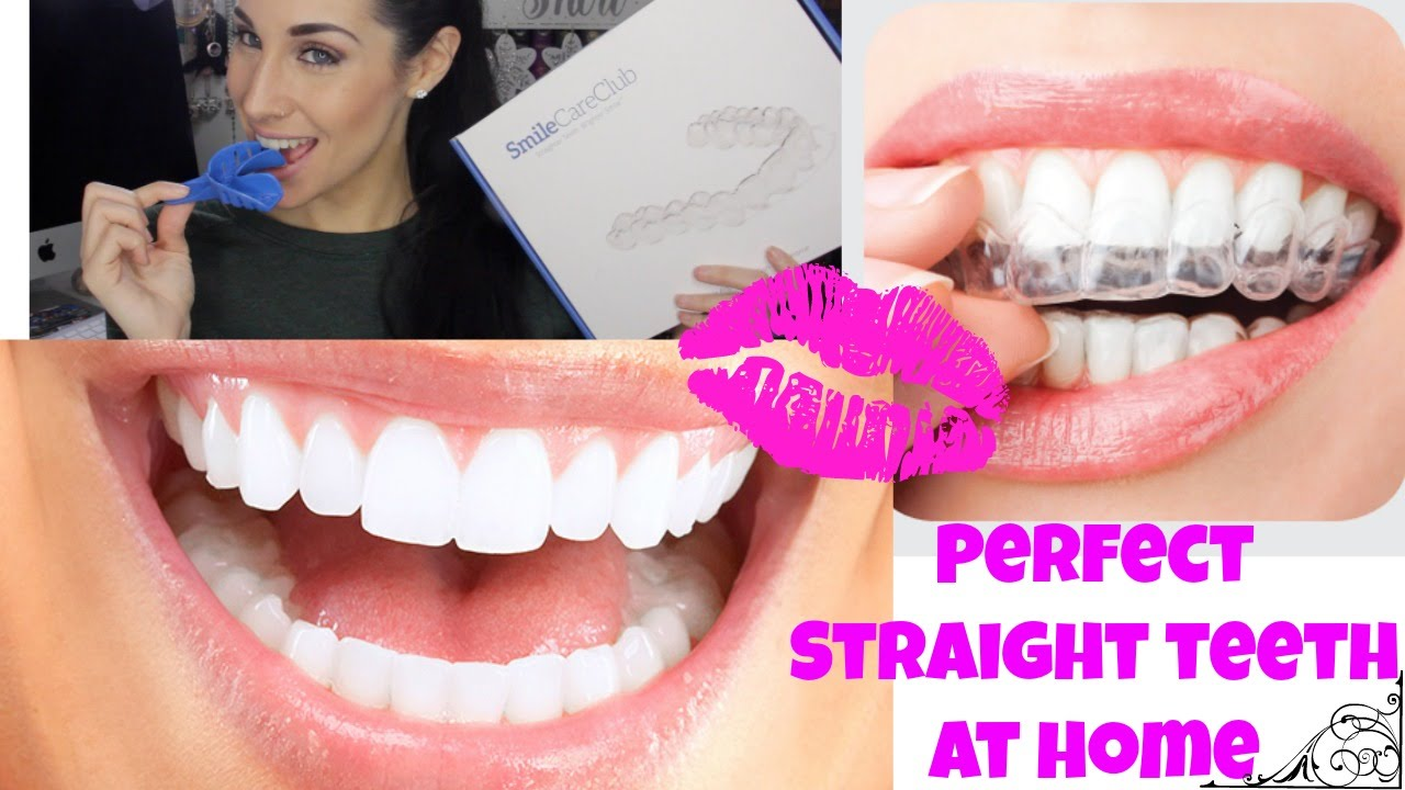 professional braces at home ♡ teeth aligners for straight perfect