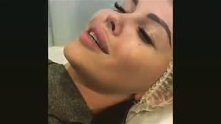 видео Контурная пластика губ цены в Ростове