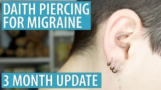 Daith Piercing for Migraine - 3 Month Update
