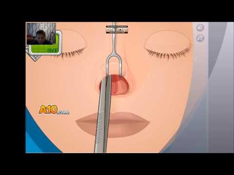 Игра операция на нос угараю