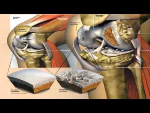 gota acido urico normal que cantidad de acido urico es la normal en hombres que te eleva el acido urico