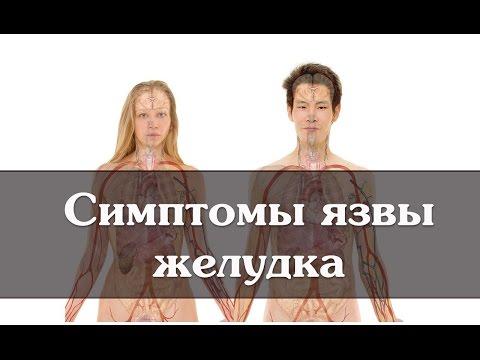 Симптомы и проявления язвенной болезни