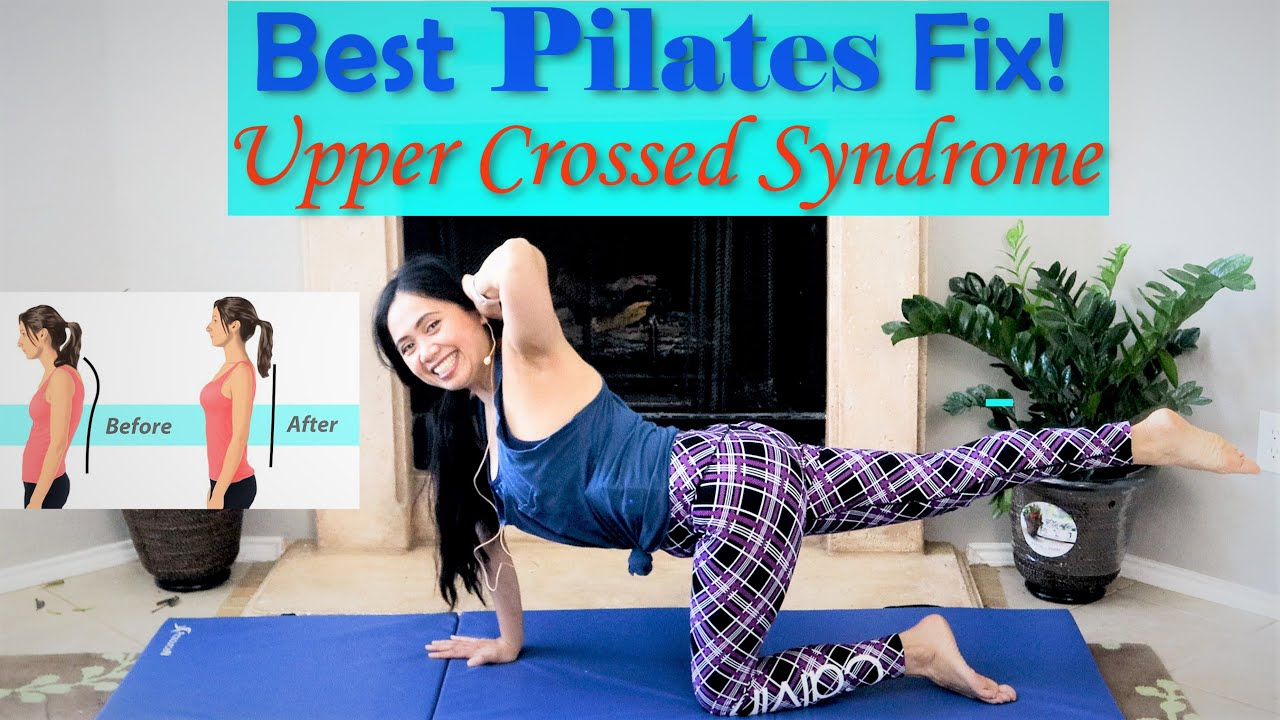 15+ Upper cross syndrome exercises inspirations