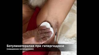 Ботокс при гипергидрозе