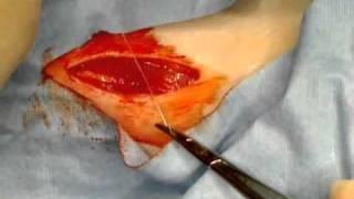 Thyroidectomy.wmv