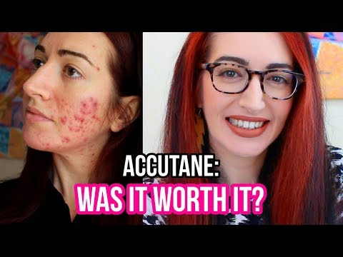 My FINAL Accutane Update (I Hope...) Results: What's Good & What's BAD!