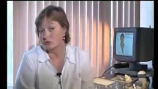 видео Сотрясение мозга и алкоголь: возможные последствия