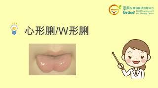 言語治療系列 : 甚麼是黐脷筋? Speech Therapy Tongue Tie