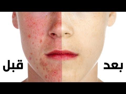 أفضل طريقة لإزالة حب الشباب سريعا !! - وتجميل الوجه بدون عمليات تجميل